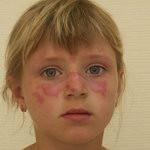 поражение кожи при аллергии