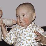 проявление аллергии у детей
